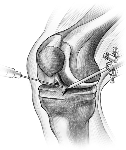 Рисунок коленного сустава